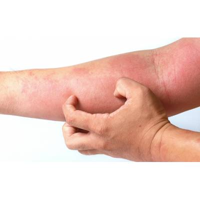 Produkty na Atopowe Zapalenie Skóry (AZS)