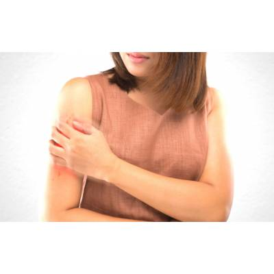 Produkty do leczenia i łagodzenia objawów chorób skórnych, egzemy